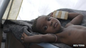 A child undergoing treatment for cholera in Haiti's capital Port-au-Prince, 27 November  2011.