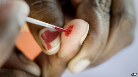 A person does a blood test at a roadside Aids testing table in Langa, a suburb of Cape Town, 2010