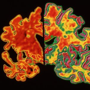 Alzheimer&#039;s affected brain (l) compared to healthy brain