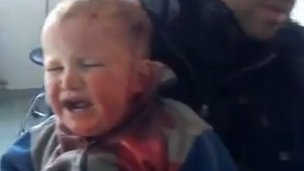 Video posted online on 21 December 2011 purportedly showing young boy wounded in Jabal al-Zawiya