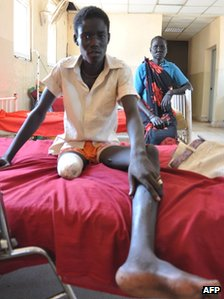A South Sudanese 19-year-old soldier, Tuter Chiok, sits on his hospital bed at a hospital in the town of Bentiu on 14 November 2011 as he recovers from a land mine accident in South Sudan's oil-rich Unity state in September