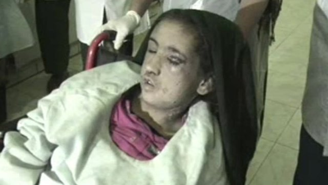 Fifteen-year-old Sahar Gul in a wheel chair with black eyes and scars ...