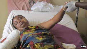 An Unidentified victim of the Christmas day bomb explosion at St. Theresa Catholic Church in Madalla, receives treatment at the University of Abuja teaching hospital Gwagwalada in Abuja , Nigeria, Thursday, Dec. 29, 2011