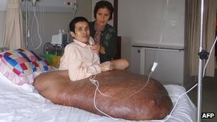 Nguyen Duy Hai with his 90-kg tumour next to his mother at FV Hospital in Ho Chi Minh City on Wednesday, before a 12-hour operation to remove it, in a photo released by the hospital