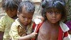 Malnourished children in India