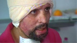 "Self-immolation patient ""Hosni"""