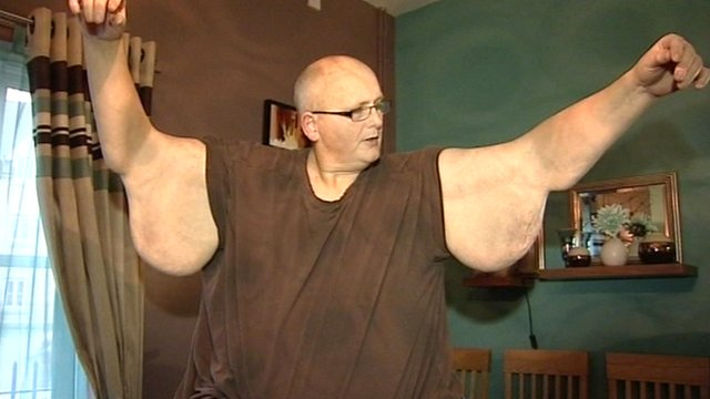 World's Fattest Man Loses Weight