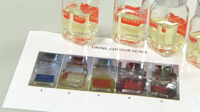 Testing urine colour