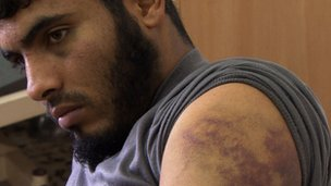 Ibrahim Mohammed Ibrahim shows bruises on arms