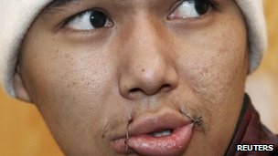 A prisoner on hunger strike has his mouth sewn with wire at a prison in the Kyrgyz capital Bishkek on Tuesday