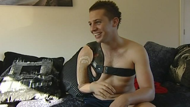 Andrew Garthwaite with his current bionic arm