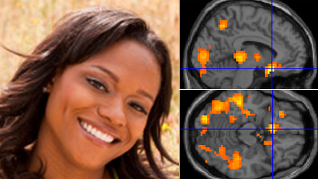 Smiling face, and brain activity it triggers