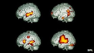 Scans showing brain activity when speaking/listening