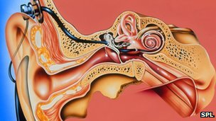 Artwork of cochlear implant in the ear
