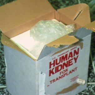 Kidney transplant box
