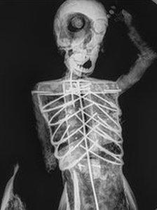 Mermaid x-ray