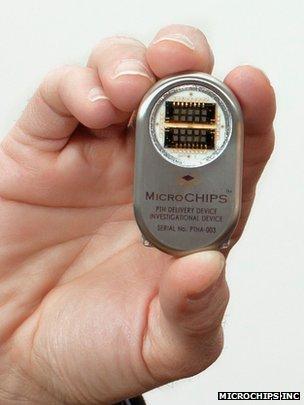 Implant device