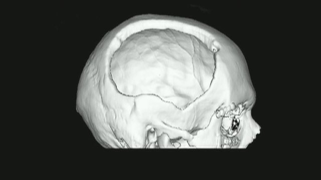 Model of Tim Barter's skull