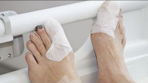 Feet of a person with diabetes