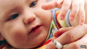 Baby exposed to cigarette smoke