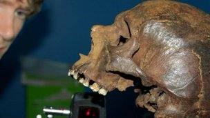 A skull from the Mary Rose