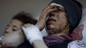 Injured Syrians in Idlib, Syria. Photo: March 2012