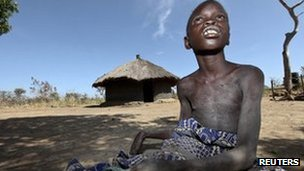 "Nancy Lamwaka, 12, who is suffering from nodding syndrome, sits out in the open in Lapul, Pader district, 300 km (186 miles) north of Uganda""s capital of Kampala, February 8, 2012."