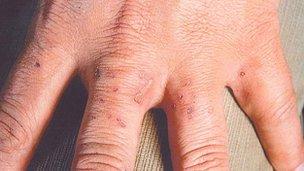 David Gilroy's hand