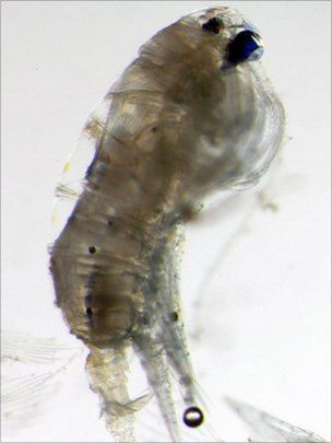 Anomalocera ornata copepod viewed under the microscope