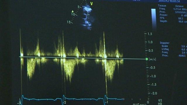An echocardiogram
