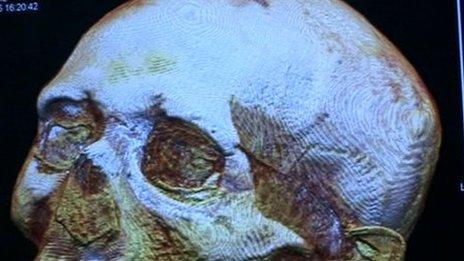 CT scan of Iset Tayef Nakht's skull