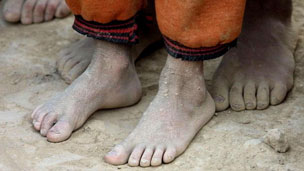 Feet of Tajik children after a long day of harvesting