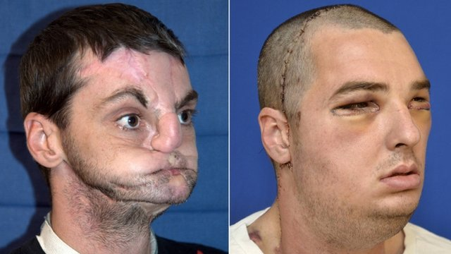 Richard Norris before (L) and after his face transplant