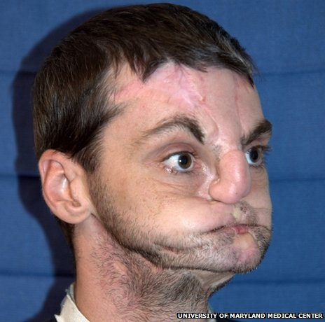 Richard Norris before his face transplant operation (Photo: University of Maryland Medical Center)