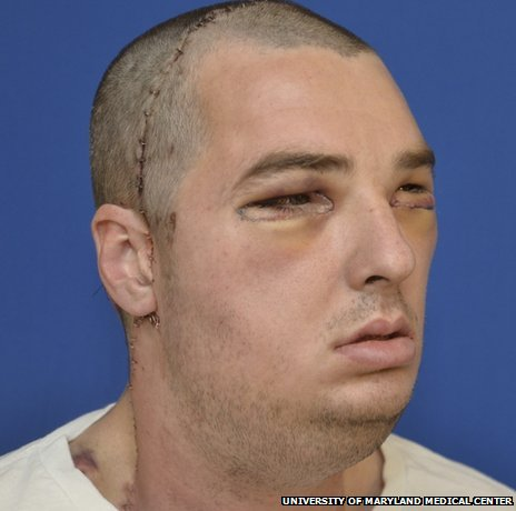Richard Norris after his face transplant operation (Photo: University of Maryland Medical Center)