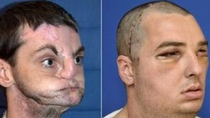 Pictures of Richard Norris before (L) and after his face transplant