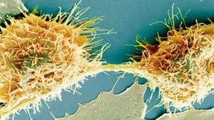 Dividing cancer cell