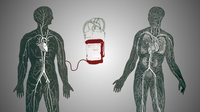 A graphic visualisation of a bag of blood being intravenously injected into a man&#039;s arm  