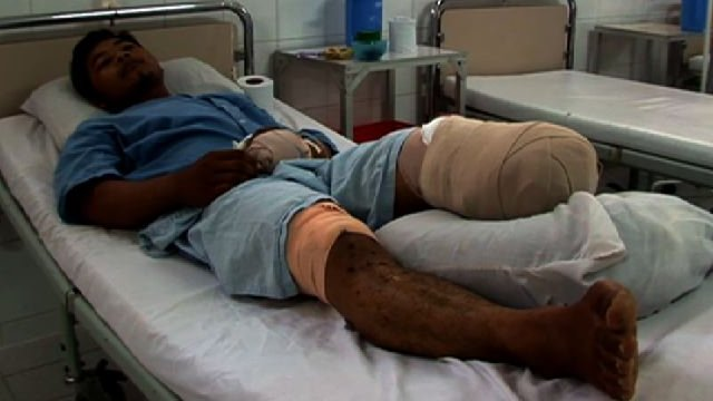 Man with amputated leg lies in hospital bed
