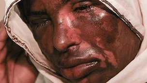 Acid attack victim Masqood