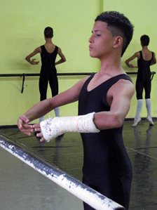 A young dancer with a broken arm