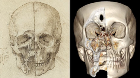 Da Vinci sketch of a skull and a CT image of one