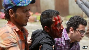 Egyptian anti-military protesters help a wounded demonstrator during clashes in the Abbassiya district of Cairo on 2 May, 2012