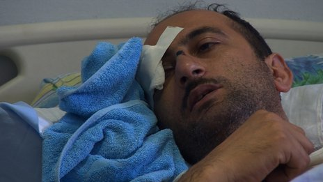 Idrak Abbasov lying in hospital bed with one eye covered by a dressing