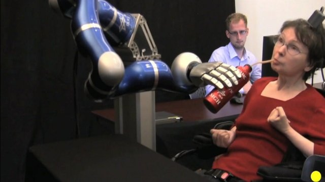 Robotic arm controlled by patient&#039;s brain