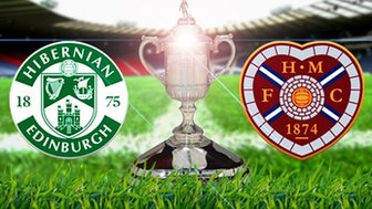 Hibs v Hearts 