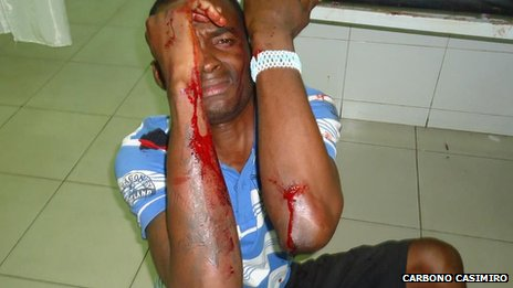 One of the group of rappers injured in Luanda on 22 May 2012
