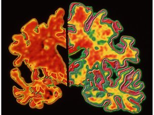 Composite of brain scans
