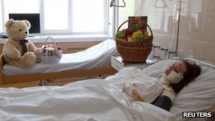 A woman injured during a bomb blast is seen at the hospital in Dnipropetrovsk