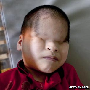 Child with Agent Orange-related deformity